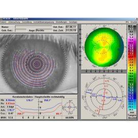 kontaktlinsen-08